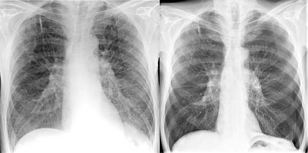Brustkrebs breitete Lungen aus